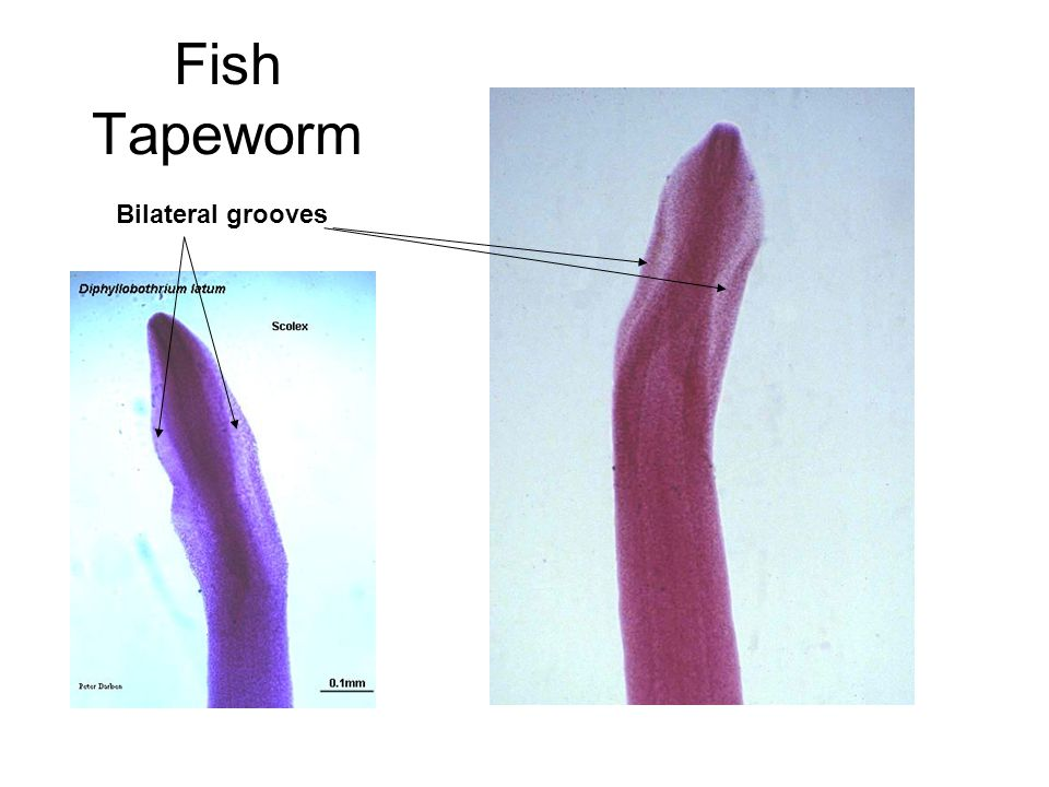 Fish Tapeworm Bilateral grooves