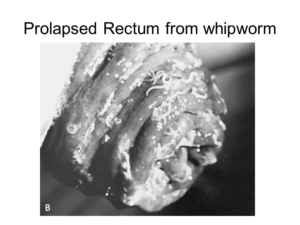 Prolapsed Rectum from whipworm