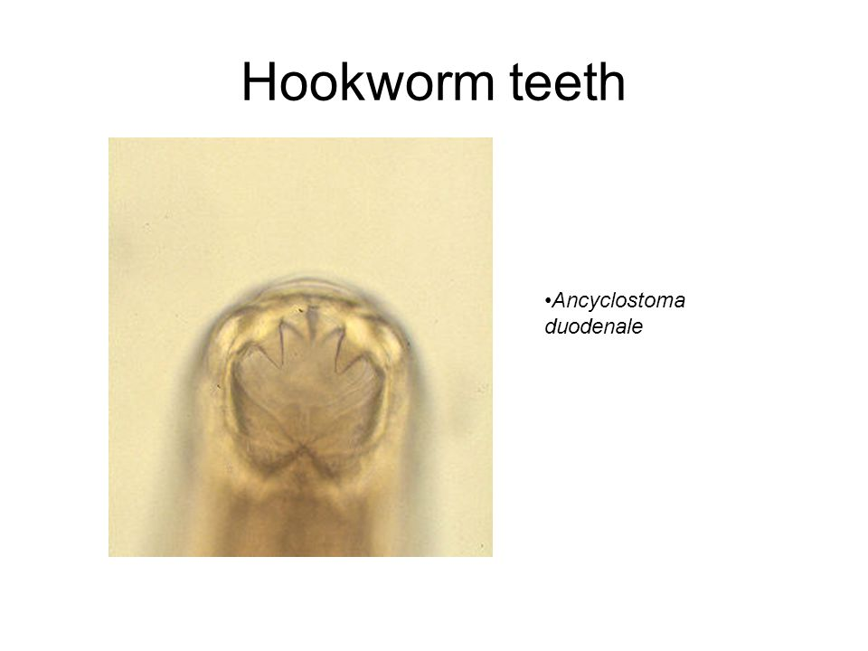 Hookworm teeth Ancyclostoma duodenale