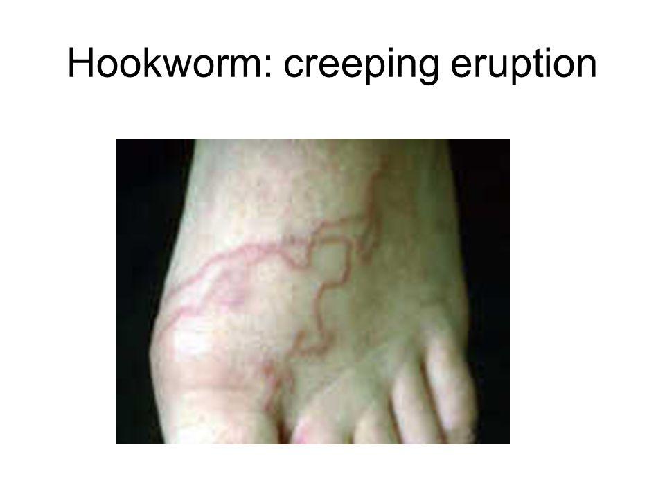 Hookworm: creeping eruption