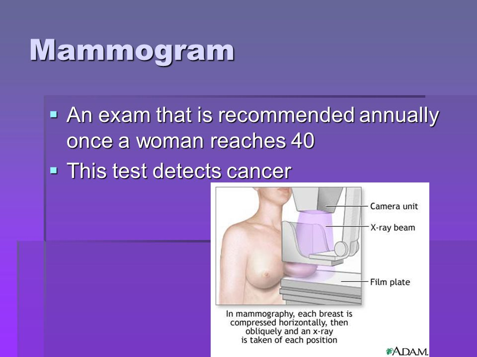Mammogram An exam that is recommended annually once a woman reaches 40
