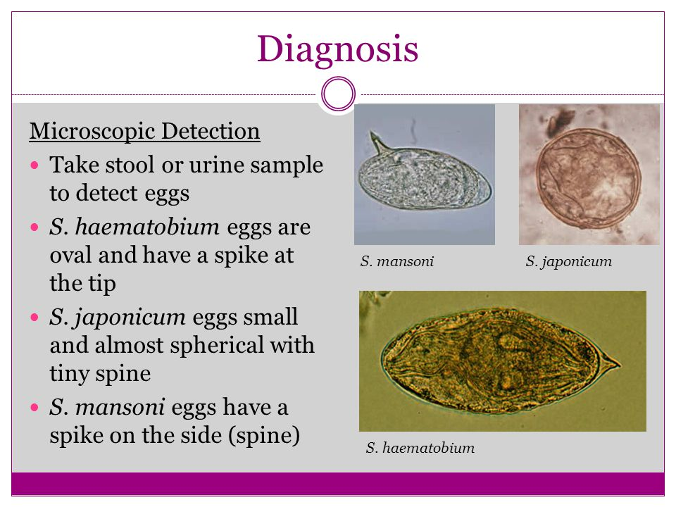 Diagnosis Microscopic Detection