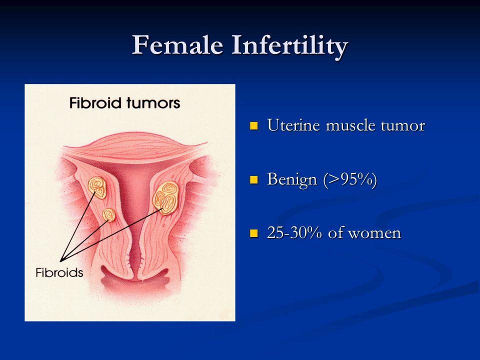 Female Infertility Uterine muscle tumor Benign (>95%)
