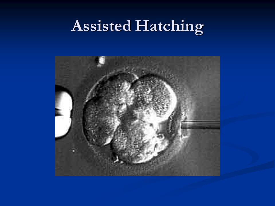 Assisted Hatching