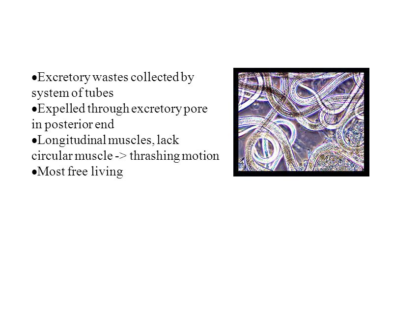 Excretory wastes collected by system of tubes
