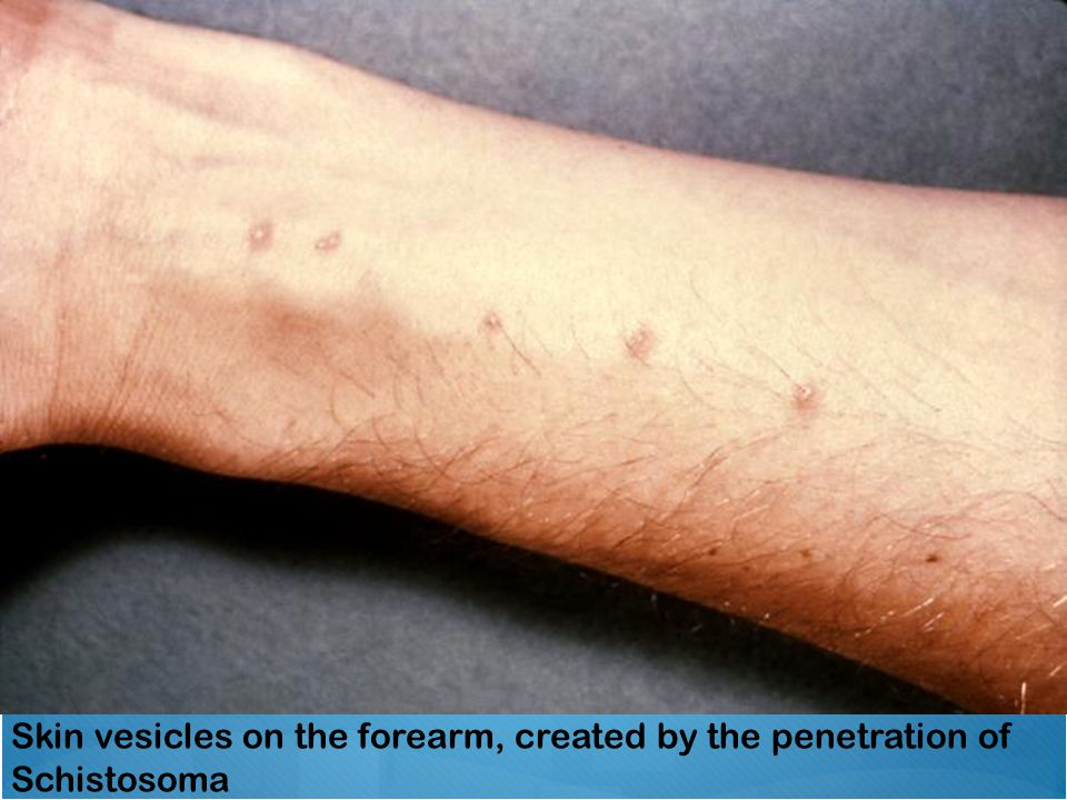 Skin vesicles on the forearm, created by the penetration of Schistosoma