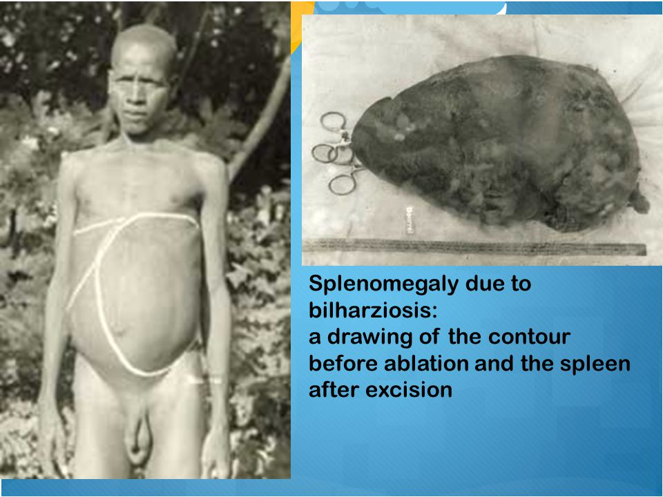 Splenomegaly due to bilharziosis: