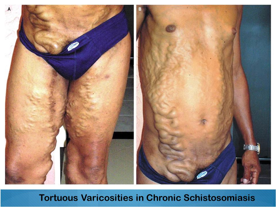 Tortuous Varicosities in Chronic Schistosomiasis