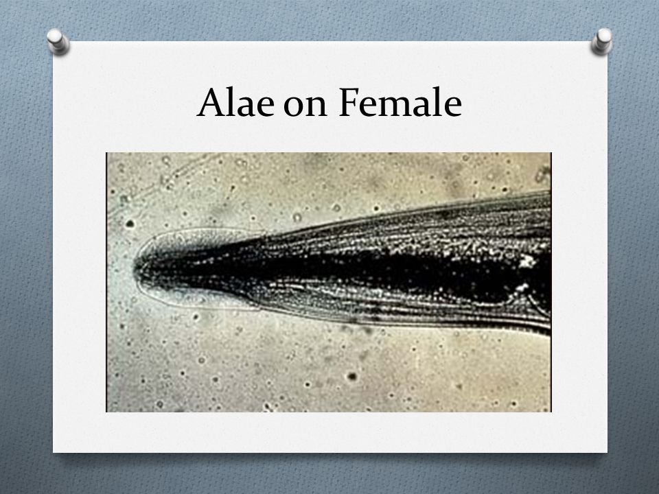 Alae on Female