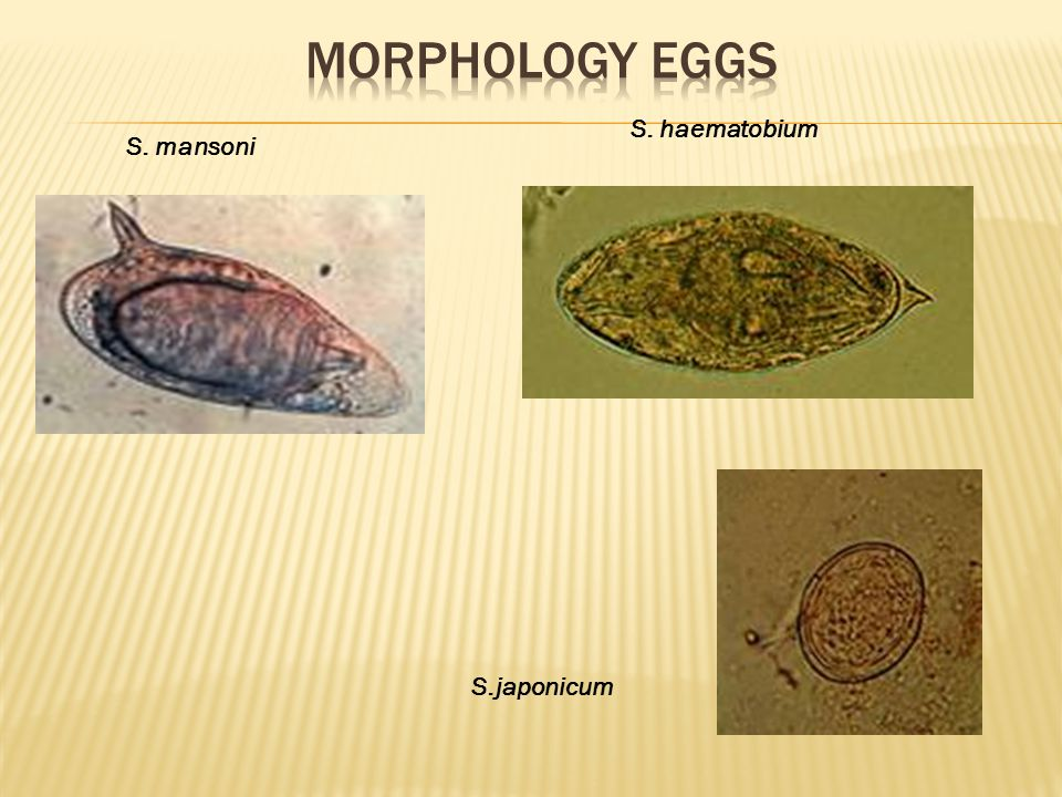 Morphology eggs S. haematobium S. mansoni S.japonicum Login: Register