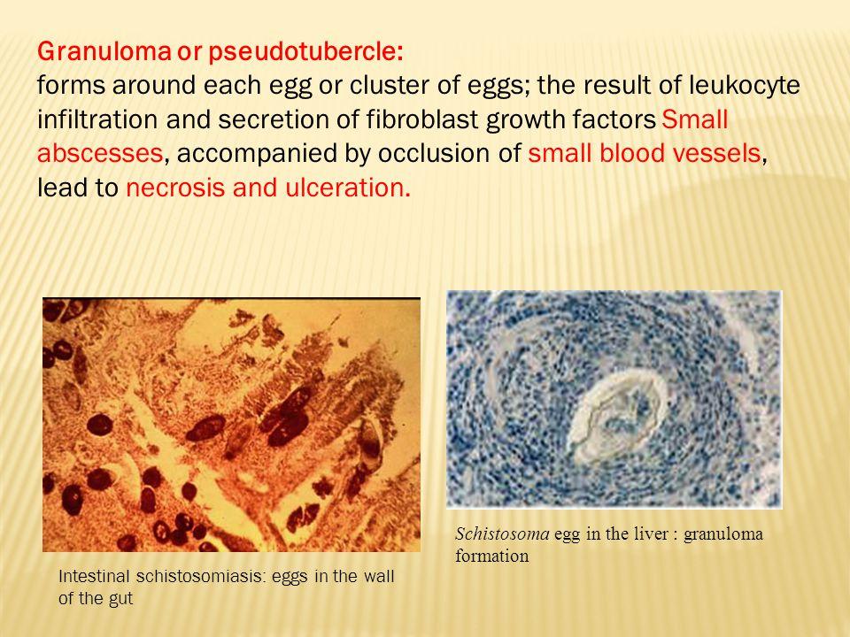 Granuloma or pseudotubercle: