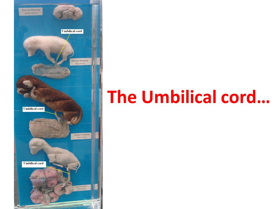 The Umbilical cord…