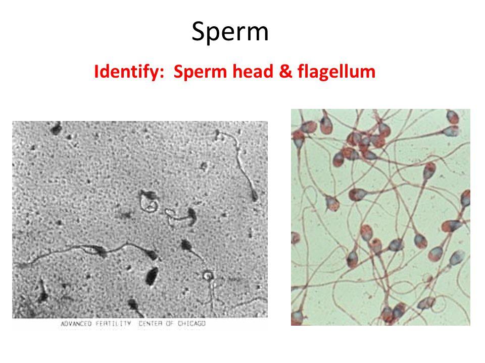 Sperm Identify: Sperm head & flagellum