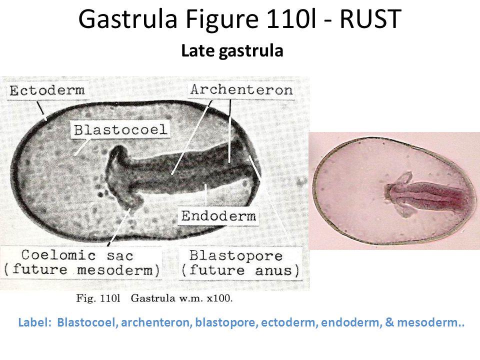 Gastrula Figure 110l - RUST