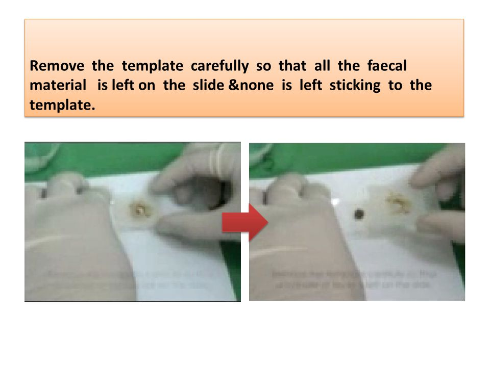Remove the template carefully so that all the faecal material is left on the slide &none is left sticking to the template.