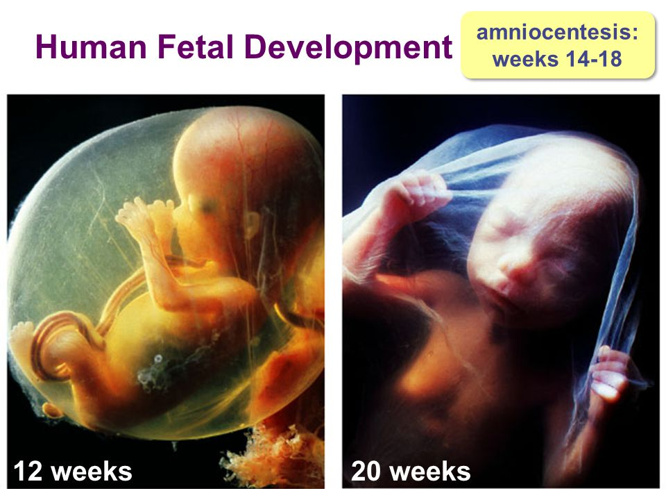 Human Fetal Development
