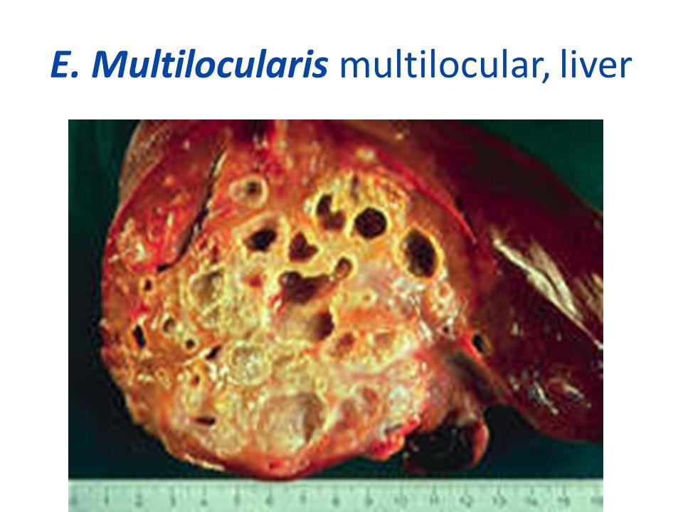 E. Multilocularis multilocular, liver