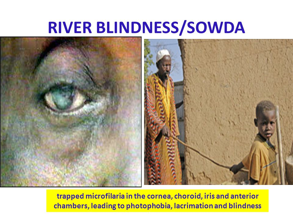 RIVER BLINDNESS/SOWDA