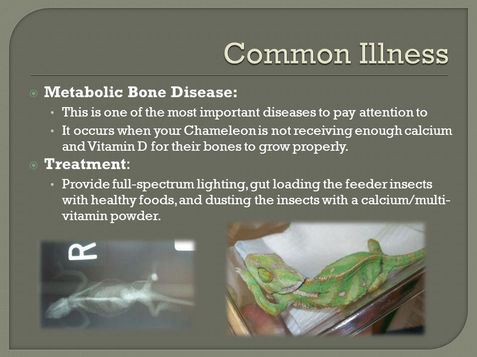 Common Illness Metabolic Bone Disease: Treatment: