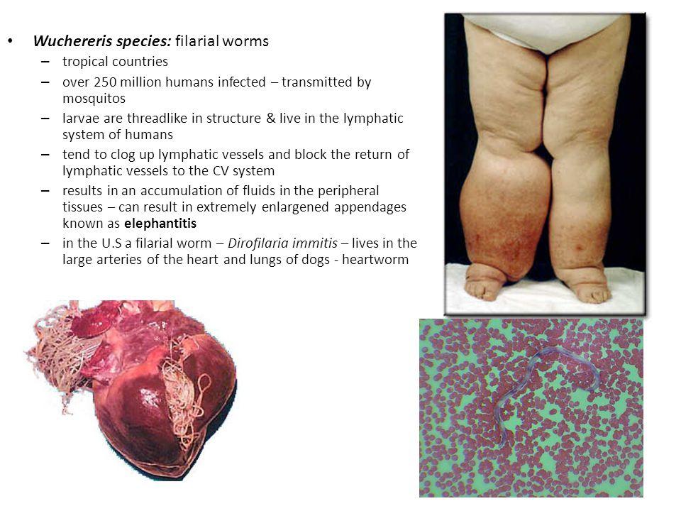 Wuchereris species: filarial worms