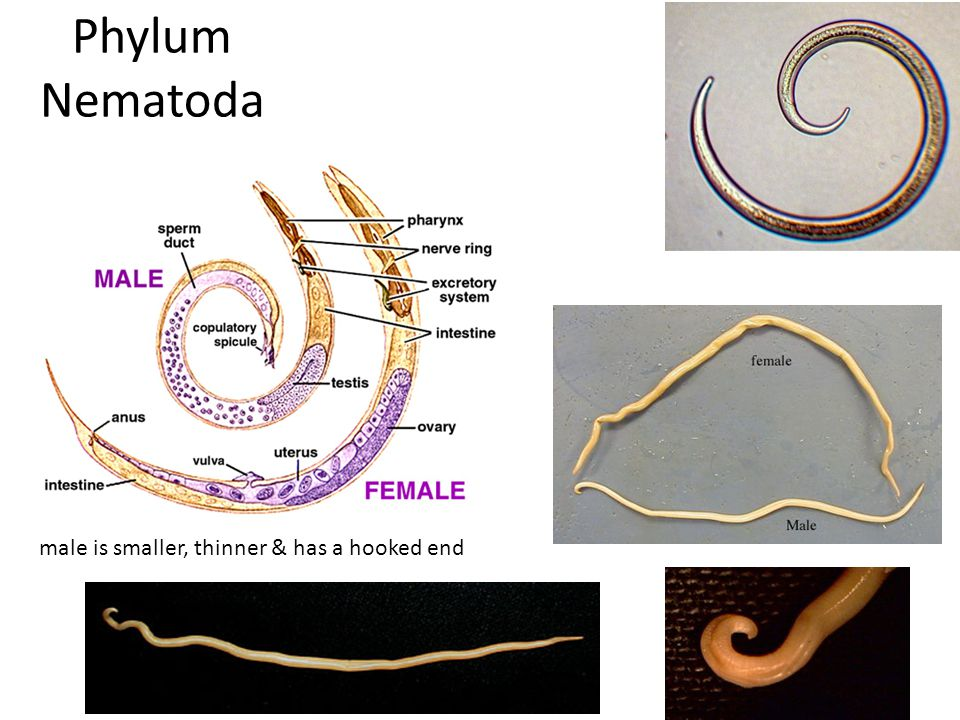 Phylum Nematoda male is smaller, thinner & has a hooked end