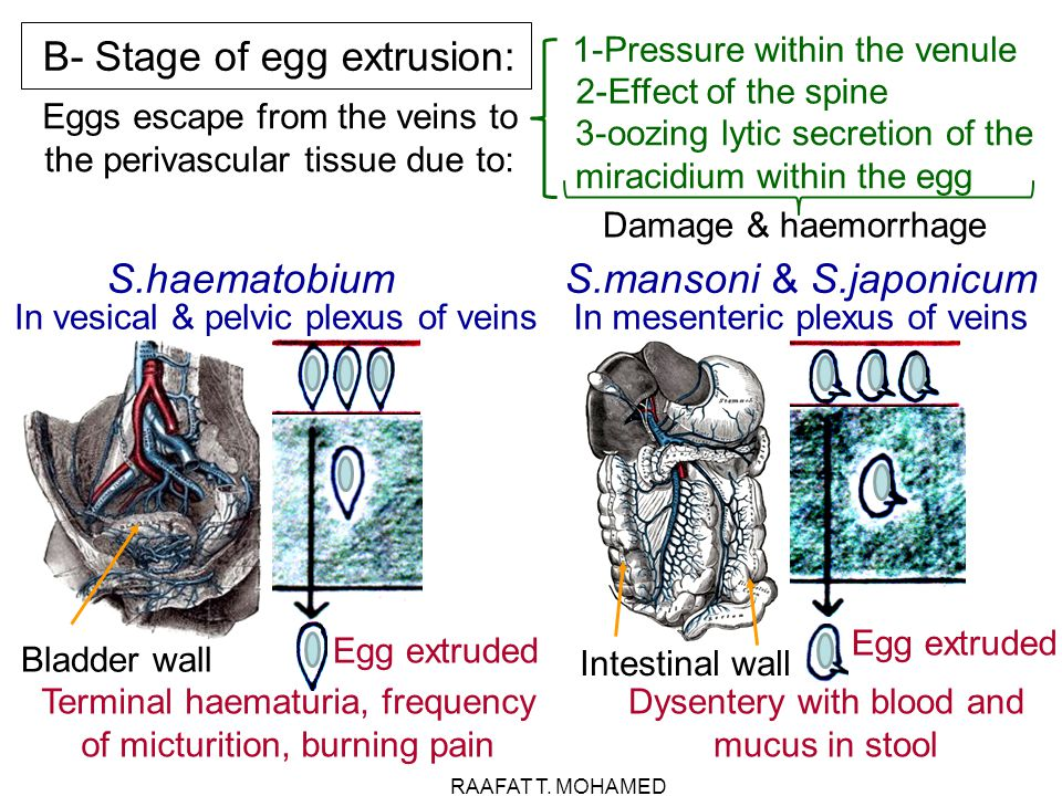 B- Stage of egg extrusion: