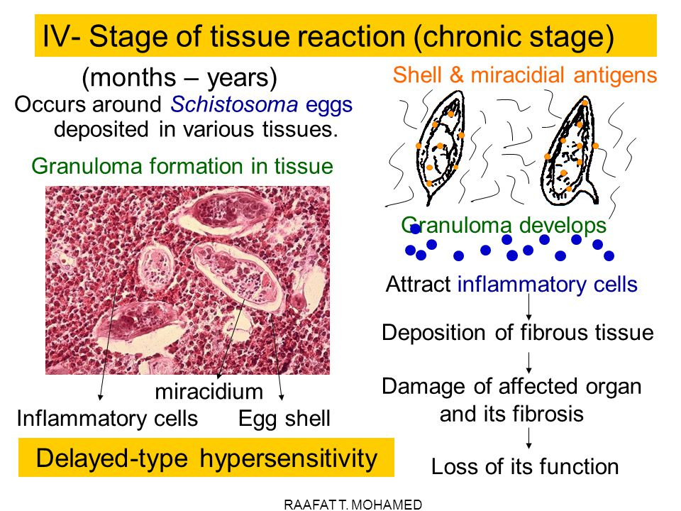 IV- Stage of tissue reaction (chronic stage)