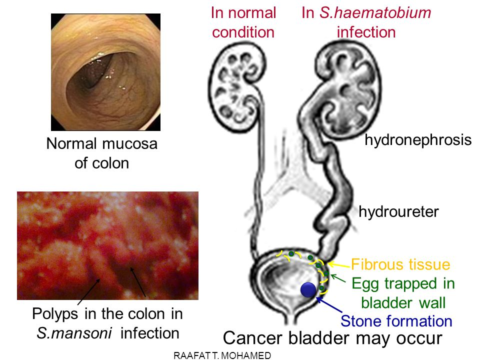Cancer bladder may occur