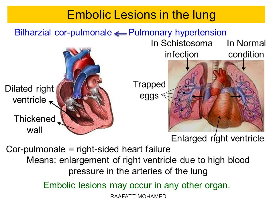 Embolic Lesions in the lung