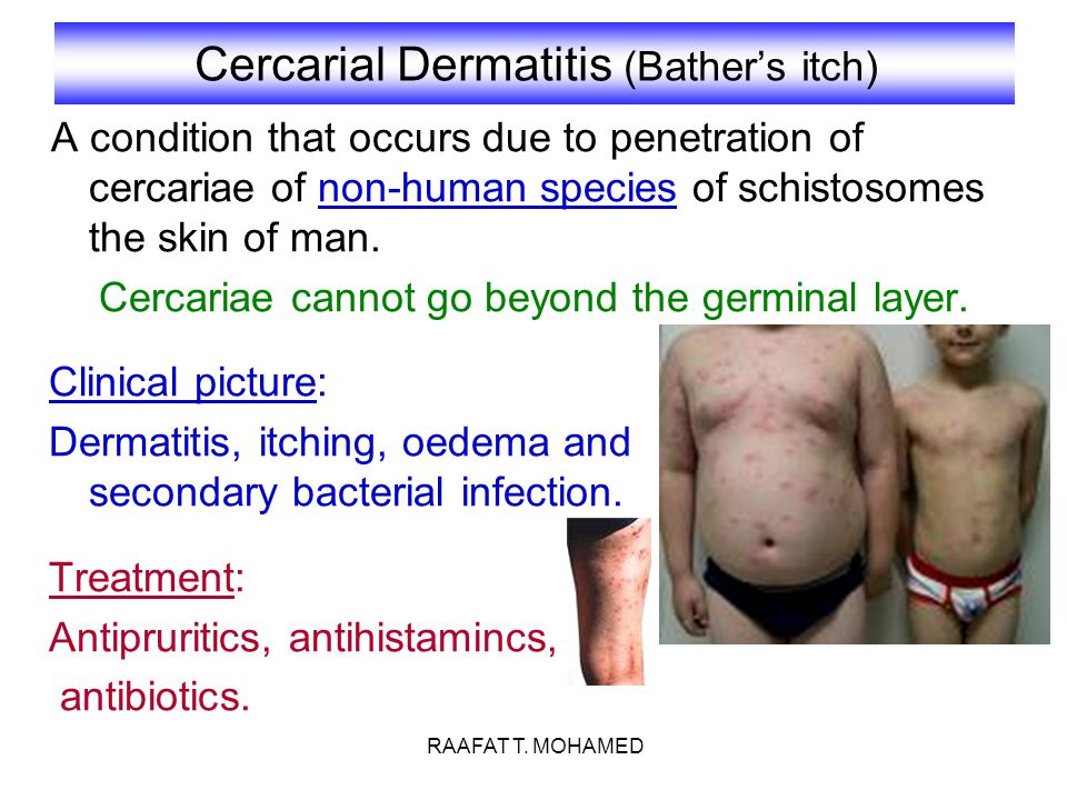 Cercarial Dermatitis (Bather's itch)