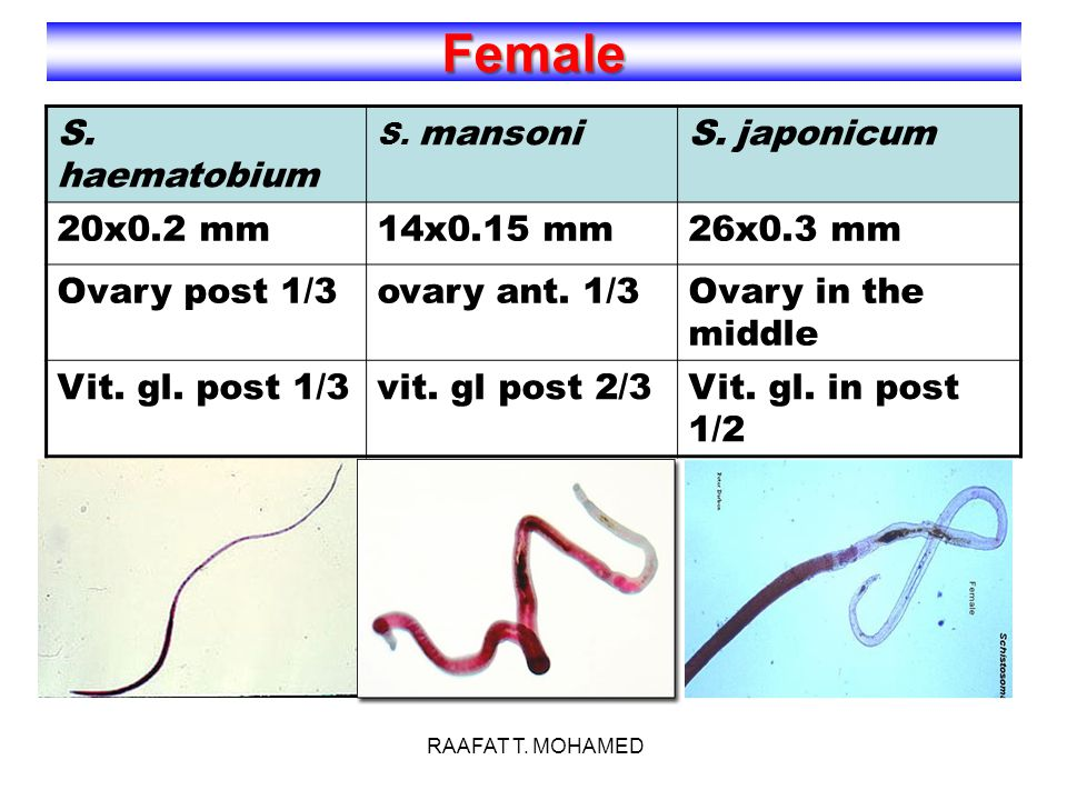 Female S. haematobium S. japonicum 20x0.2 mm 14x0.15 mm 26x0.3 mm