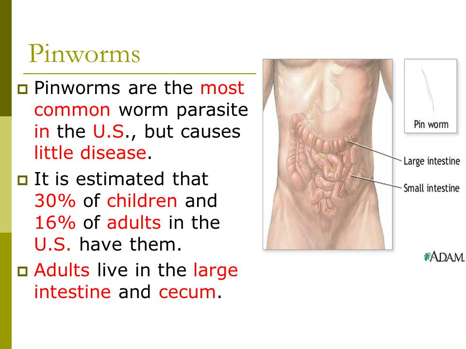 Pinworms Pinworms are the most common worm parasite in the U.S., but causes little disease.