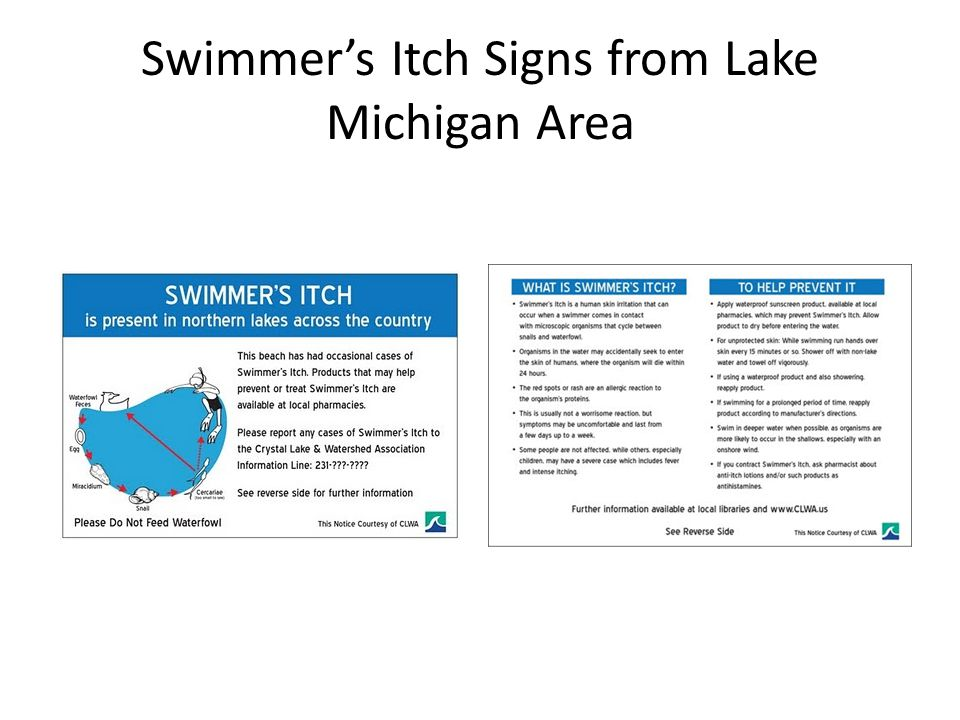 Swimmer's Itch Signs from Lake Michigan Area