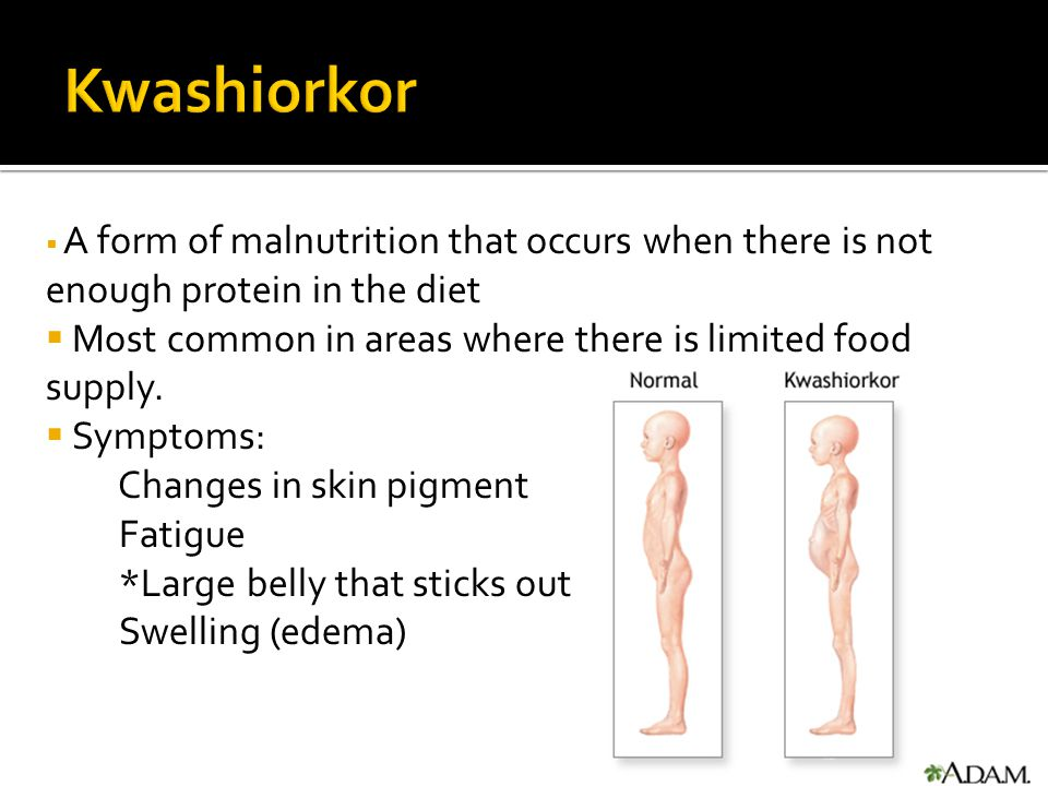 Kwashiorkor Most common in areas where there is limited food supply.