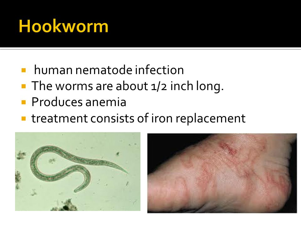 Hookworm human nematode infection The worms are about 1/2 inch long.
