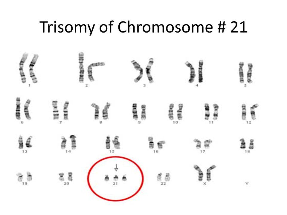 Trisomy of Chromosome # 21