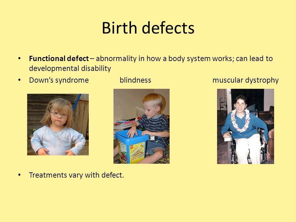 Birth defects Functional defect – abnormality in how a body system works; can lead to developmental disability.
