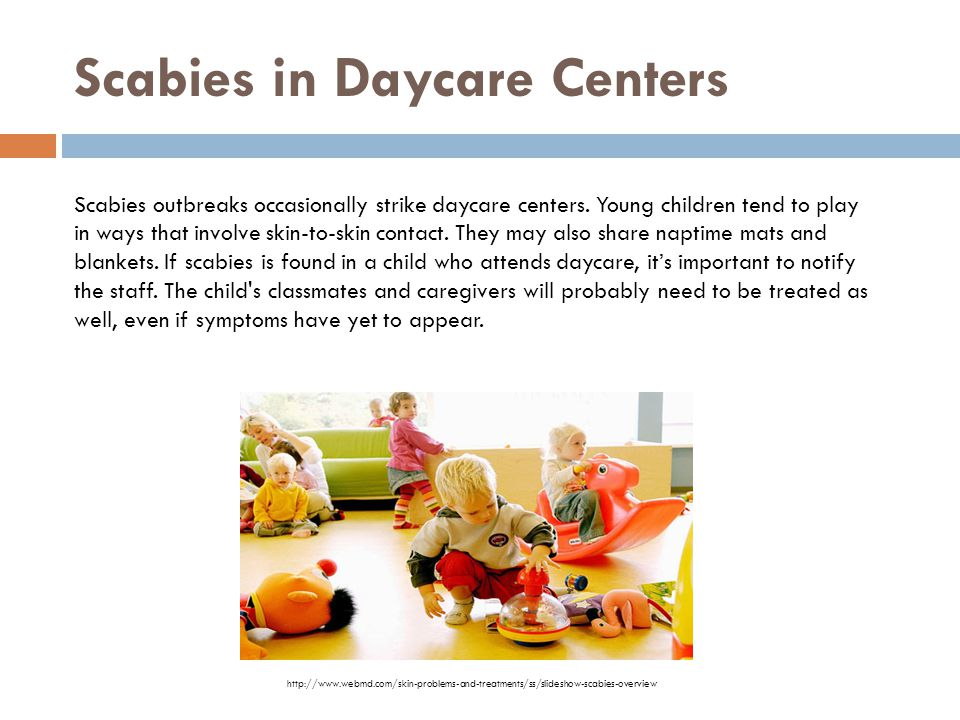 Scabies in Daycare Centers