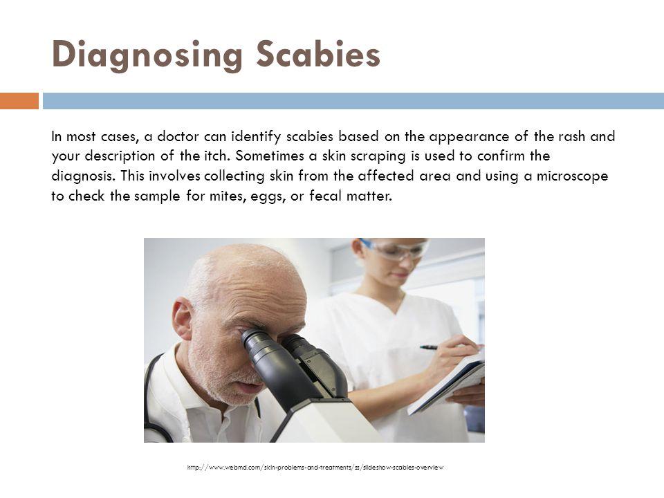 Diagnosing Scabies