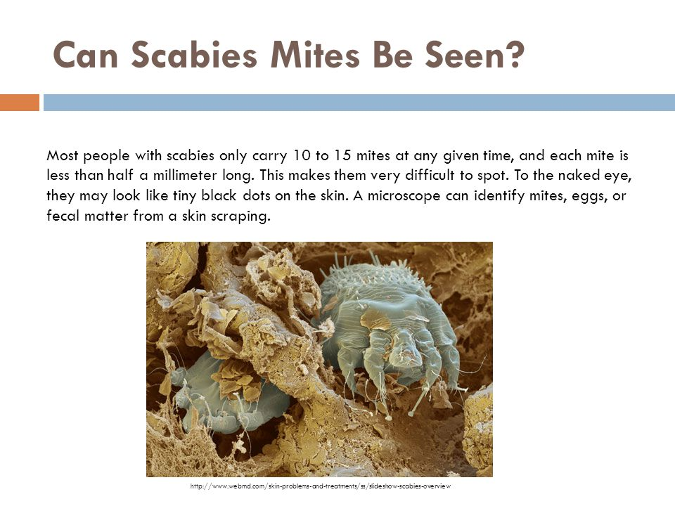Can Scabies Mites Be Seen