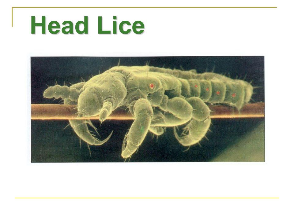 Head Lice Dos géneros de piojos infestan al ser humano: