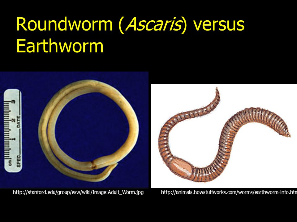 Roundworm (Ascaris) versus Earthworm