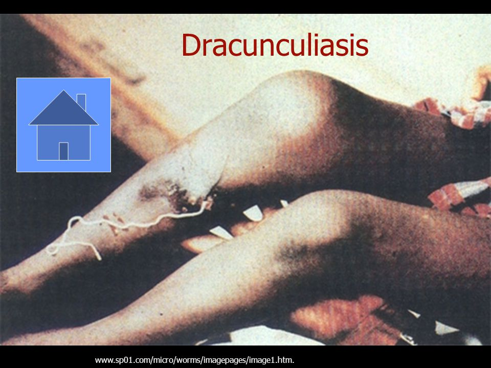 Dracunculiasis www.sp01.com/micro/worms/imagepages/image1.htm.
