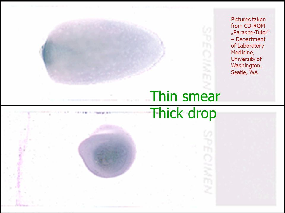 "Pictures taken from CD-ROM ""Parasite-Tutor – Department of Laboratory Medicine, University of Washington, Seatle, WA"