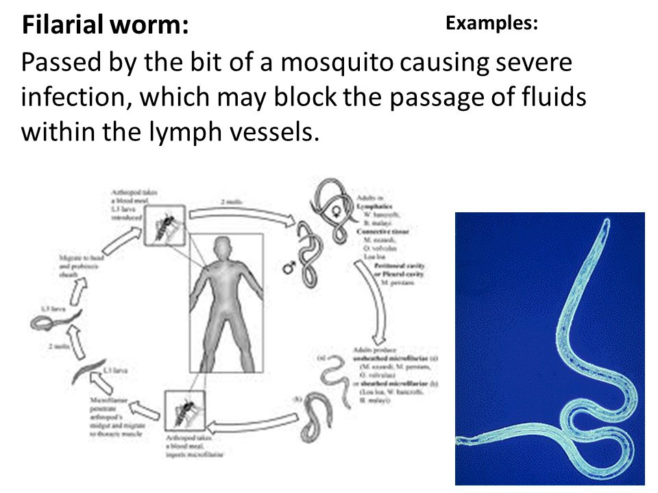 Filarial worm: Examples: Passed by the bit of a mosquito causing severe infection, which may block the passage of fluids within the lymph vessels.