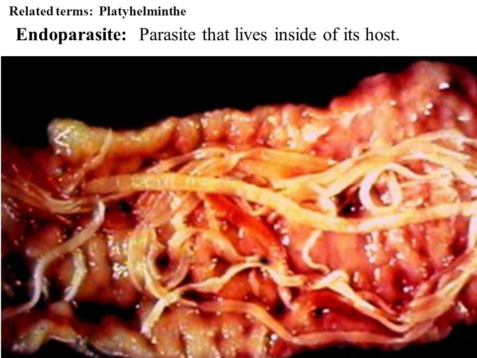 Parasite that lives inside of its host.