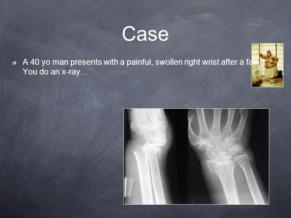 Case A 40 yo man presents with a painful, swollen right wrist after a fall. You do an x-ray…