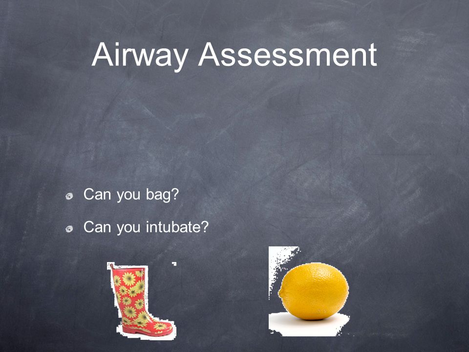 Airway Assessment Can you bag Can you intubate