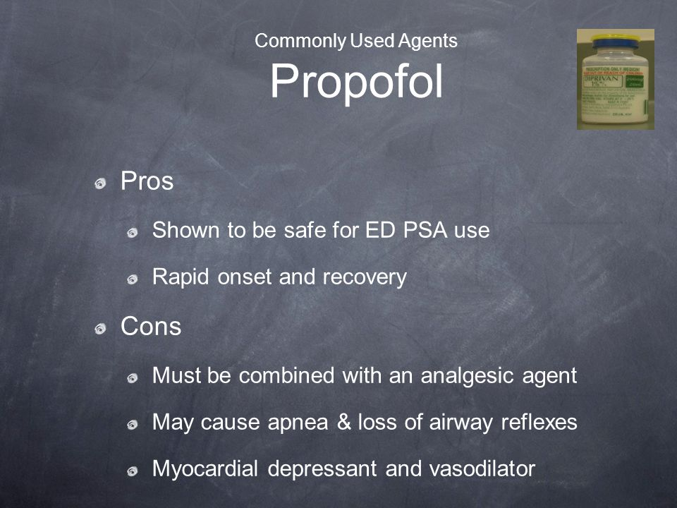 Commonly Used Agents Propofol