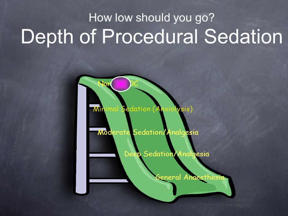 How low should you go Depth of Procedural Sedation